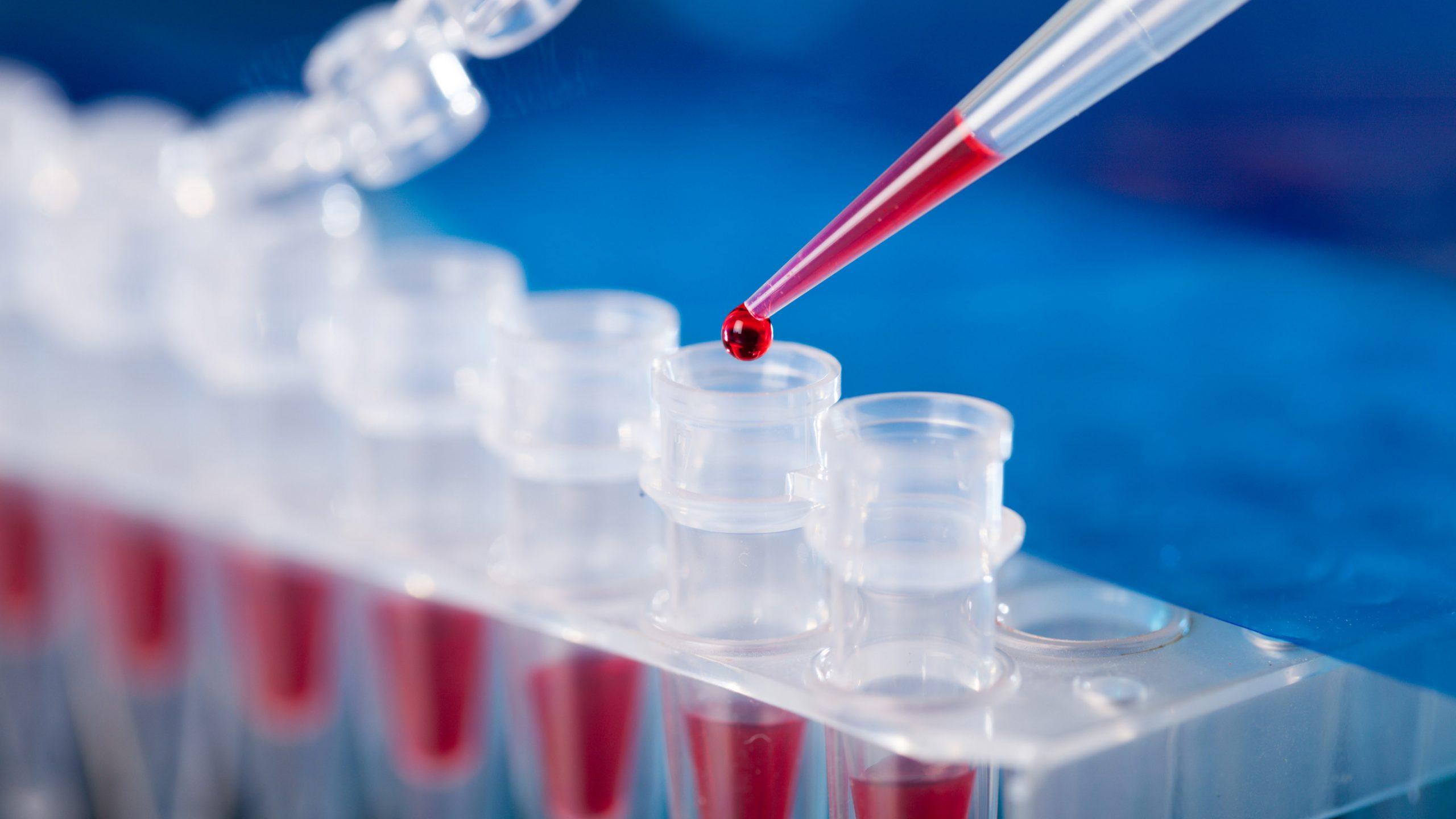 सुदूरपश्चिममा एकैदिन थपिए १३७ संक्रमित